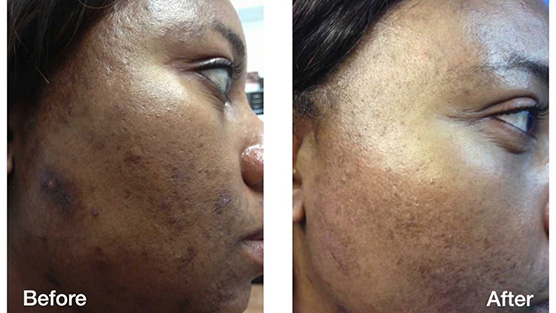 dermatology treatments for skin or color