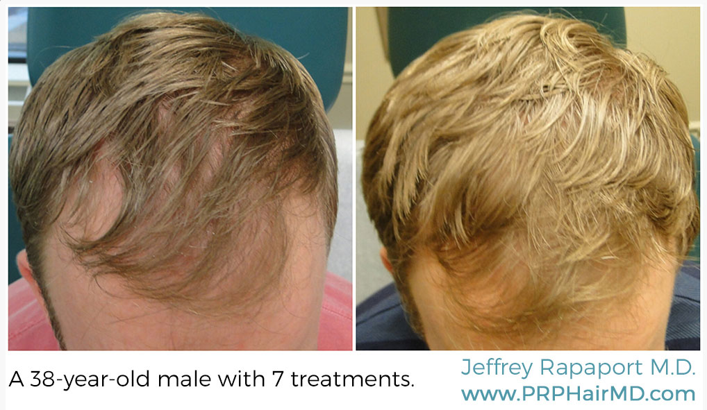 7 treatments of hair restoration with prp